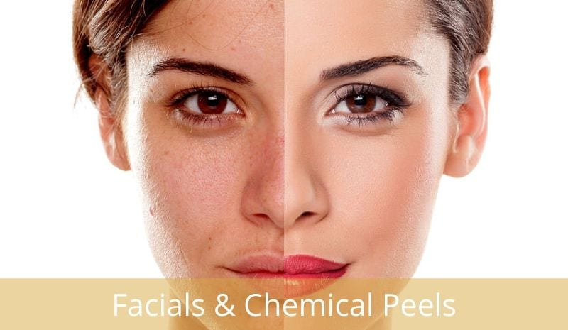 facials & chemical peels
