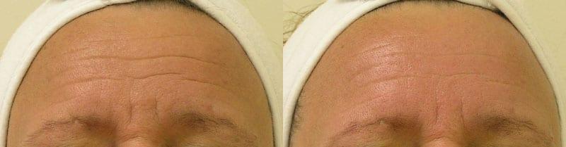 Hydrafacial-wrinkles