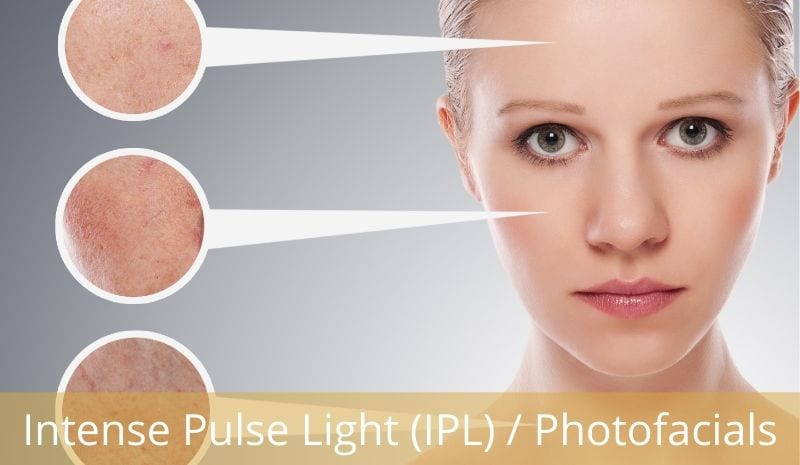 IPL - Intense pulse light photofacial