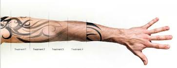 picoway resolve lasers remove tattoos over the course of several tattoo removal treatment sessions.
