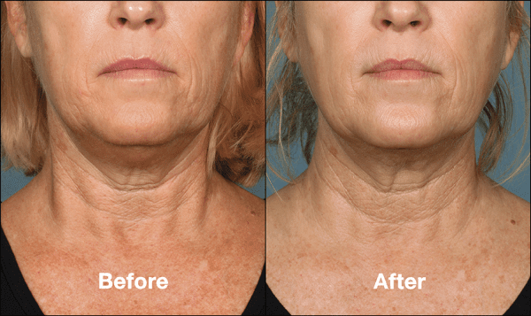 kybella before and after front view