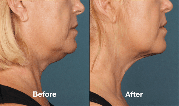 kybella before and after side view