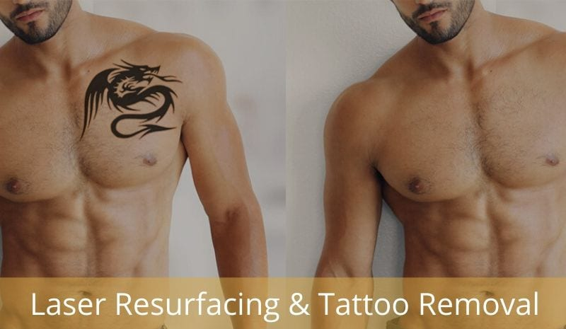 tatoo removal and laser resurfacing treatments