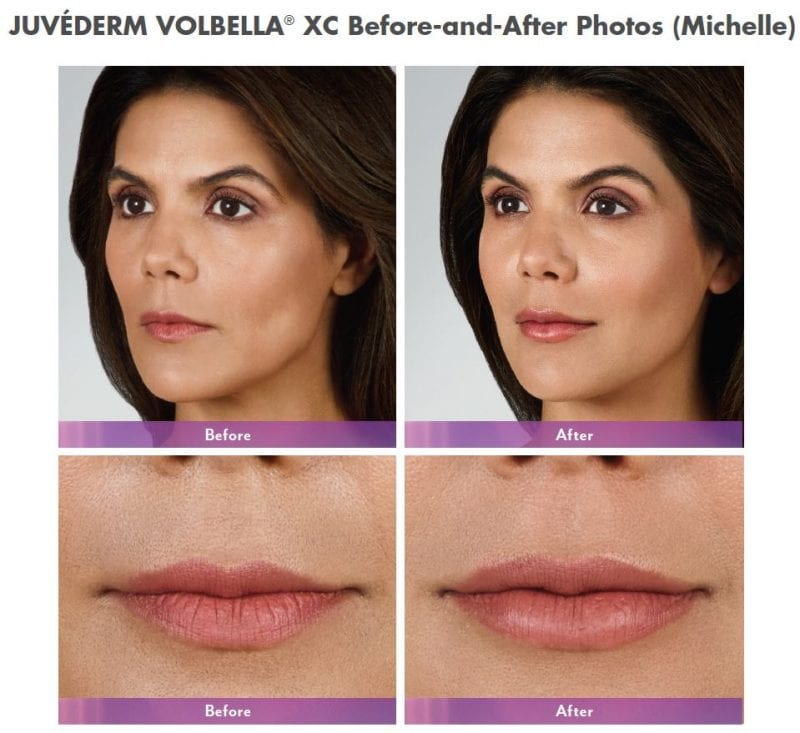 Volbella XC before and after photos