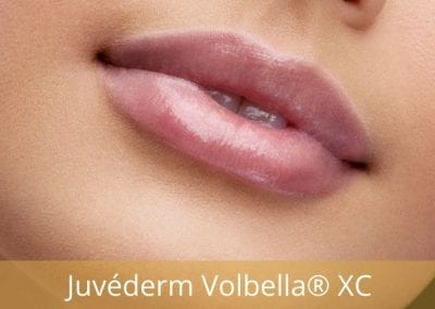 Juvederm Volbella® XC Lip Injection Gel