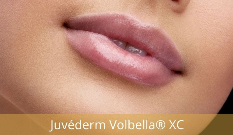 Juvederm Volbella® XC lip injectible