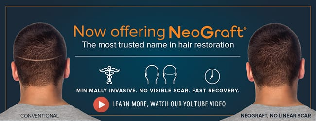 La Bella Vita Medi Spa in Rocklin now offers NeoGraft hair transplants