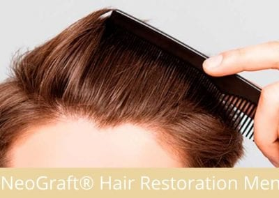 NeoGraft®Hair Restoration for Men
